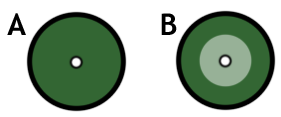diagram of zone of inhibition and bacterial lawn