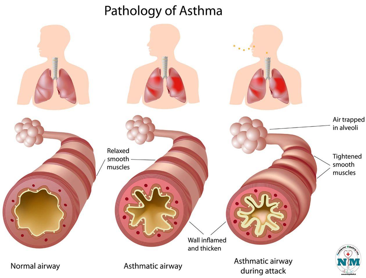 Помощь при бронхиальной астме в домашних условиях